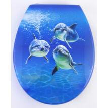 Bath Duck Wc-Ülőke - Mdf - Mintás - Cink Zsanérokkal - Delfin